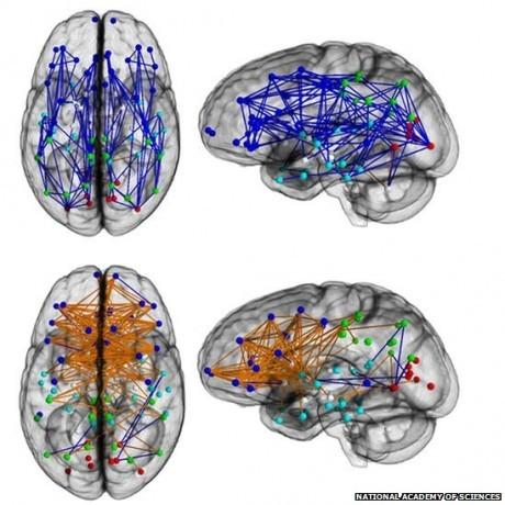 Соединения полушарий мужского мозга проходят вдоль, образуя несколько связующих мостов, у женщин они по пути перекрещиваются между левым и правым полушариями.