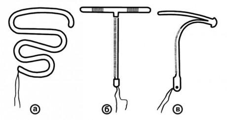 Внешний вид основных внутриматочных спиралей