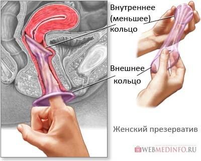 Расправьте женский презерватив указательным пальцем