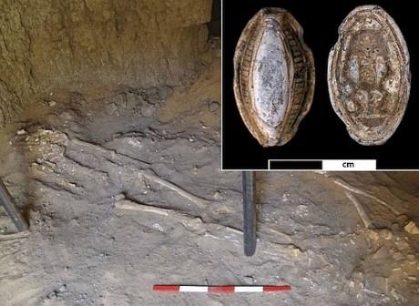 Обнаружен древний скелет человека со следами раковой опухоли