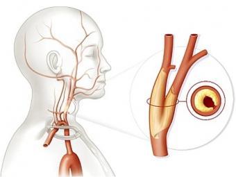 Закупорка сонной артерии может привести к нарушению мышления.