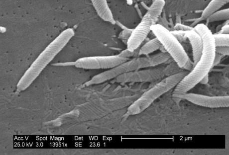Хеликобактер пилори под электронным микроскопом