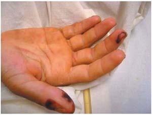 Геморрагии на правой руке.