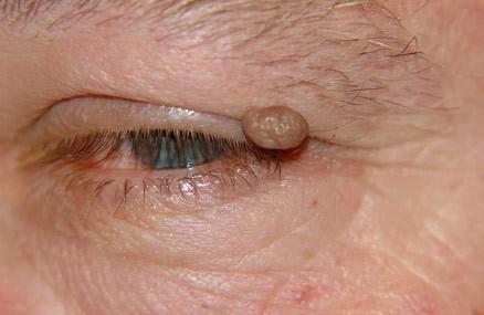 Папиллома на веке глаза (фото)