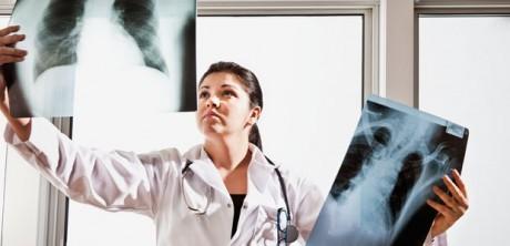 3 респираторных заболевания связаны с повышенным риском развития рака легких
