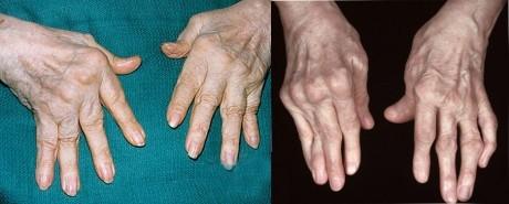 Деформации суставов один из симптомов ревматоидного артрита (фото)
