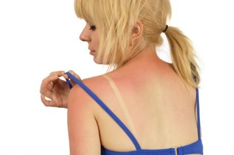 Эумеланин - пигмент, который защищает кожу от УФ-радиации