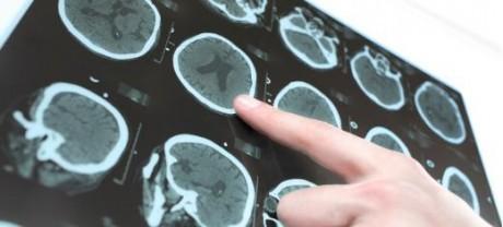 Исследователи обнаружили механизм, связанный с повреждением головного мозга после перенесенного инсульта, а теперь разрабатывают препарат, чтобы заблокировать его.