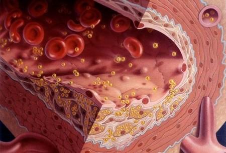 Ученые определили ген, вид (аллеля) которого влияет на уровень холестерина в старости.