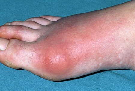 Шишка на ноге выглядит примерно так