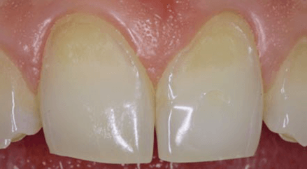 Большой клиновидный дефект эмали зуба