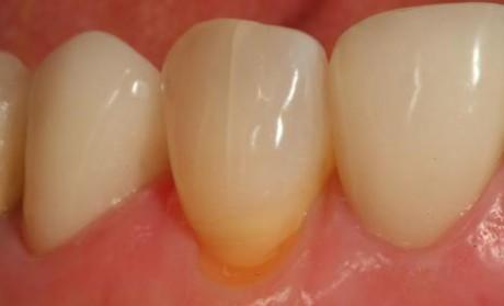 Клиновидный дефект зубов (фото)