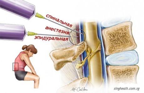 Отличия спинальной (спинномозговой) и эпидуральной анестезии.