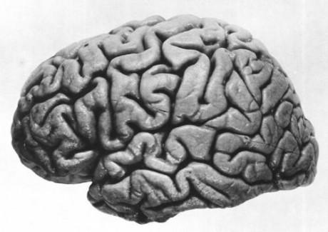 Ученые определили связь между кишечными бактериями и неврологическими и психиатрическими расстройствами.