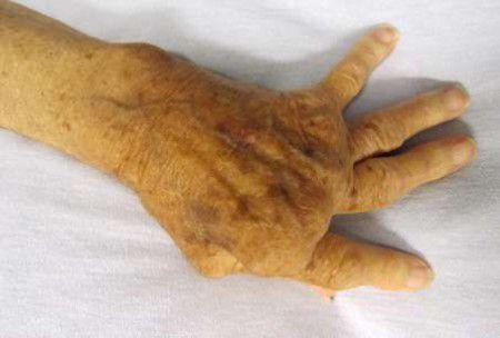 Деформация суставов при ревматоидном артрите
