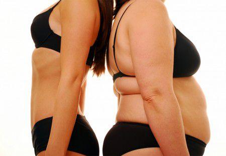 Ученые выяснили, что ожирение в пожилом возрасте снижает риск развития слабоумия