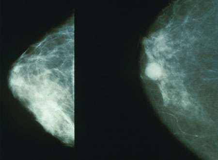 Маммография, показывающия нормальную грудь (слева) и грудь с раком (справа)