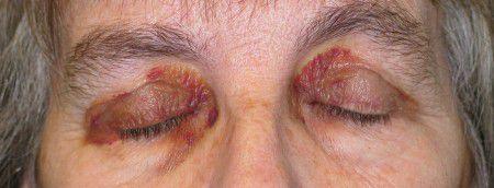 Кровоизлияния около глаз один из симптомов амилоидоза.