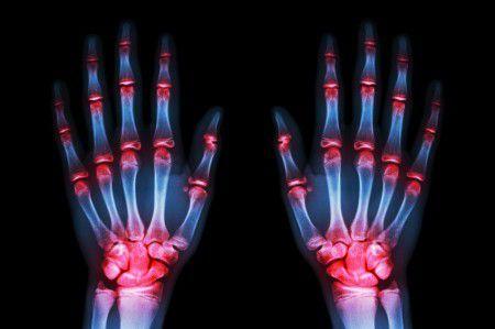 Исследователи предполагают, что высокий ИМТ может защитить мужчин от ревматоидного артрита.