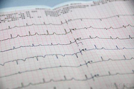 Понижение дозировки бета-блокаторов после инфаркта положительно влияет на выживаемость пациентов