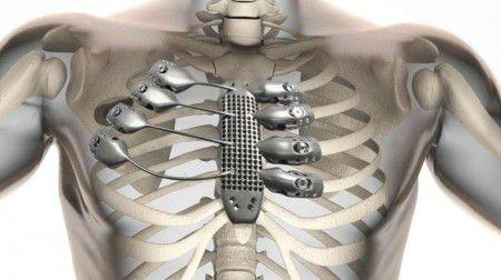 """3D-принтер """"печатает"""" искусственные кости"""