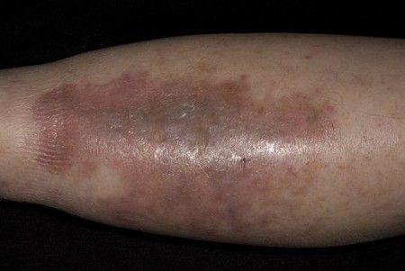 Плотный отек  микседема проявляется при гипотиреозе