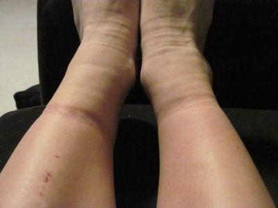 Одна из причин отечности ног - варикозная болезнь нижних конечностей
