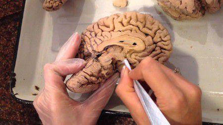 Мини-мозг позволит разработать новые методы лечения болезней