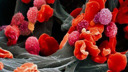 Появились новые подходы к лечению лейкемии