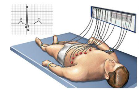 Наложение электродов при ЭКГ / электрокардиографии