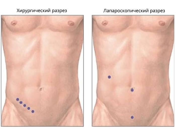 Виды разрезов в зависимости от способа удаления воспаленного аппендикса