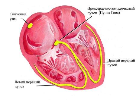 Схематическое изображение сердца: синусный узел, пучок Гиса, левый и правый нервные пучки