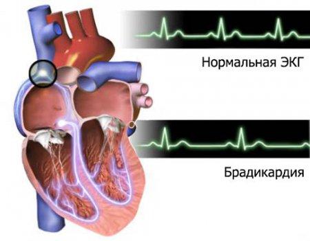 Электрокардиограмма при брадикардии