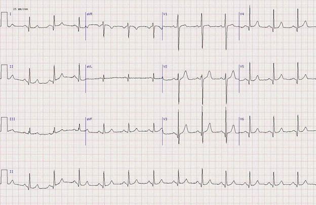 Электрокардиограмма с результатами исследования пациента, страдающего гипертрофической кардиомиопатией