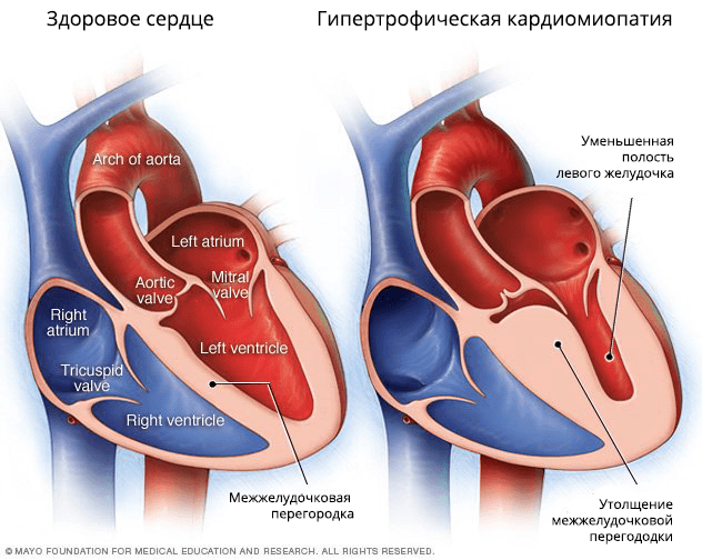 Основной признак гипертрофической кардиомиопатии