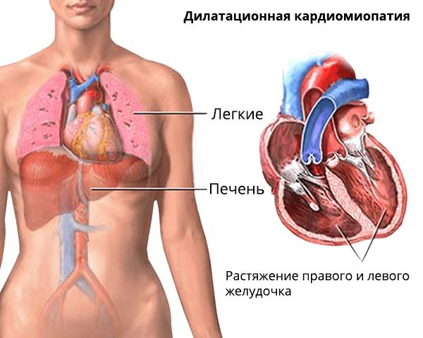 Растяжение полостей сердца при кардиомиопатии может влиять на работу легких и печени
