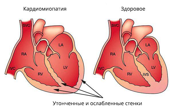 Утонченность и ослабленность стенок сосудов одно из проявлений кардиомиопатии