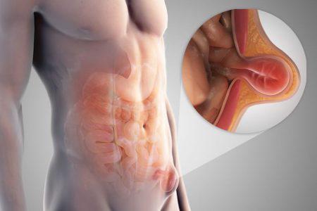 Паховая грыжа у мужчин — причины, симптомы, лечение народными средствами и операция по удалению