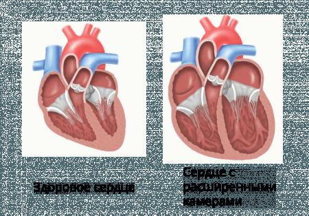 Здоровое сердце и сердце, страдающего алкогольной кардиомиопатией