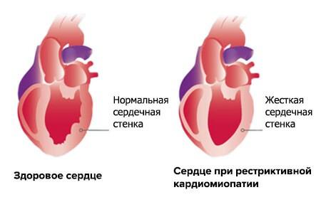 Рестриктивная кардиомиопатия: причины, симптомы и лечение