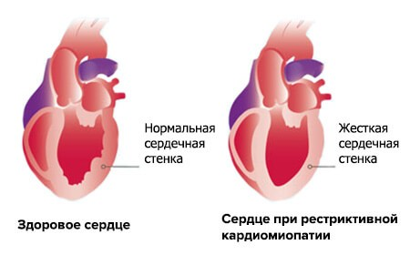 Вид стенки желудочка при рестриктивной кардиомиопатии