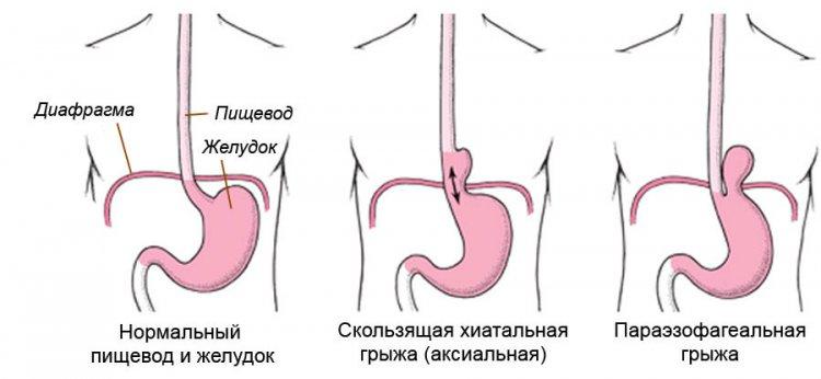 Классификация грыж пищеводного отверстия диафрагмы