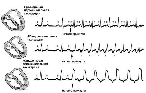 Результаты ЭКГ исследования при разных видах пароксизмальной тахикардии