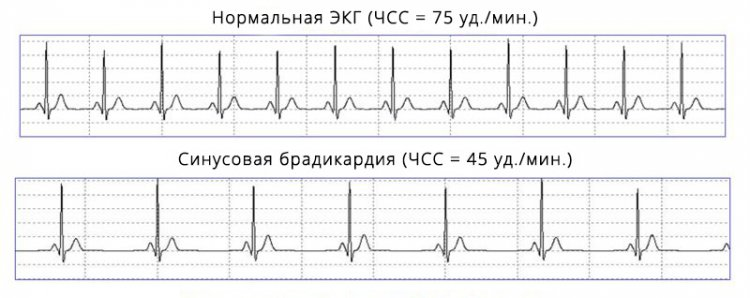Искусственная ЭКГ при здоровом сердце и синусовой брадикардии