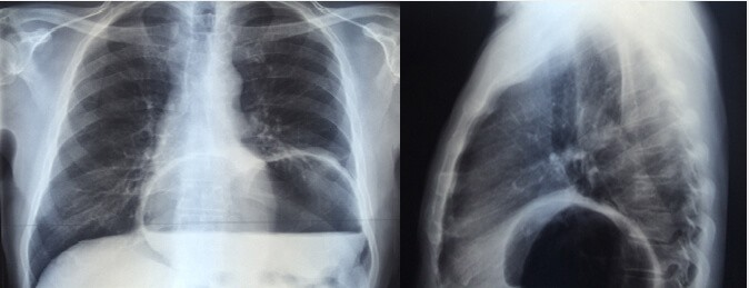 Ущемленная параэзофагеальная грыжа пищеводного отверстия диафрагмы в прямой и боковой проекциях.