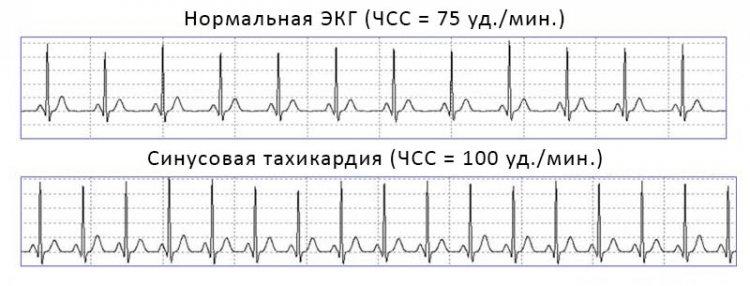 Искусственная ЭКГ при здоровом сердце и тахикардии