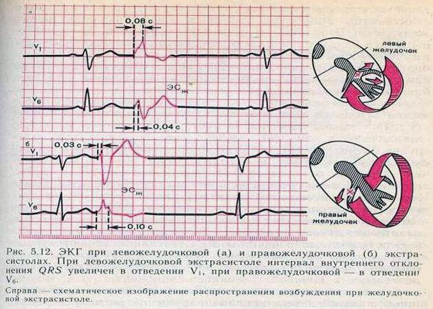ЭКГ при левожелудочковой и правожелудочковой экстрасистолах