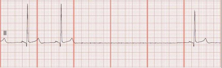Синдром слабости синусового узла протекает с брадикардией, отображение на ЭКГ