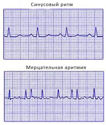 Нормальный синусов ритм и мерцательная аритмия на ЭКГ