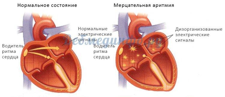Различия в генерации электрических импульсов при здоровом сердце и мерцательной аритмии
